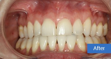 Invisalign after 10