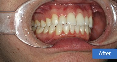 Invisalign after 9