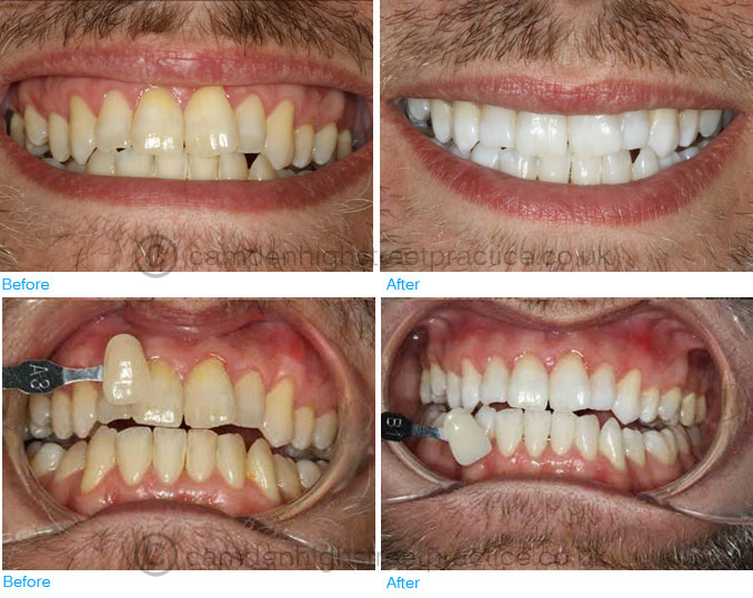 Home and zoom office whitening before after