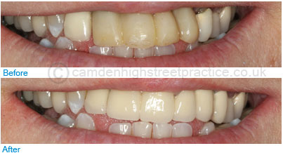 Full ceramic E-max crowns before after