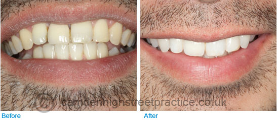Implant placement upper front right incisor before after