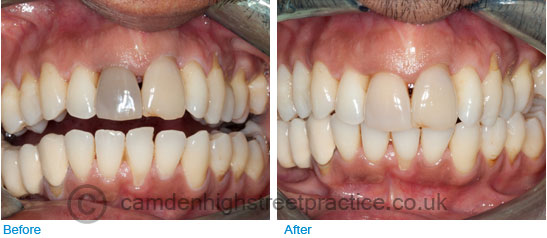 Internal bleaching upper front tooth and zoom whitening before after