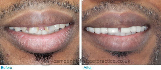 4 upper front ceramic crowns and teeth whitening before after