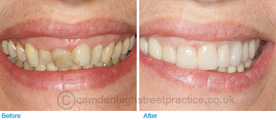 28 full ceramic crowns before after