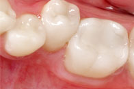 Wisdom Teeth Treatment
